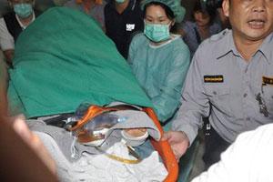 俞灏明确诊深二度灼伤 Selina已经完成清疮手术